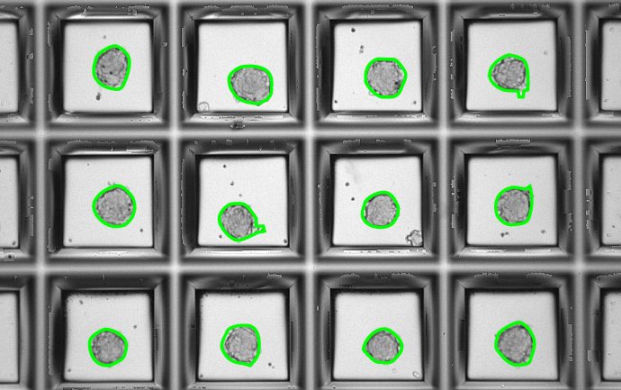 Detection of 3D-cell aggregates